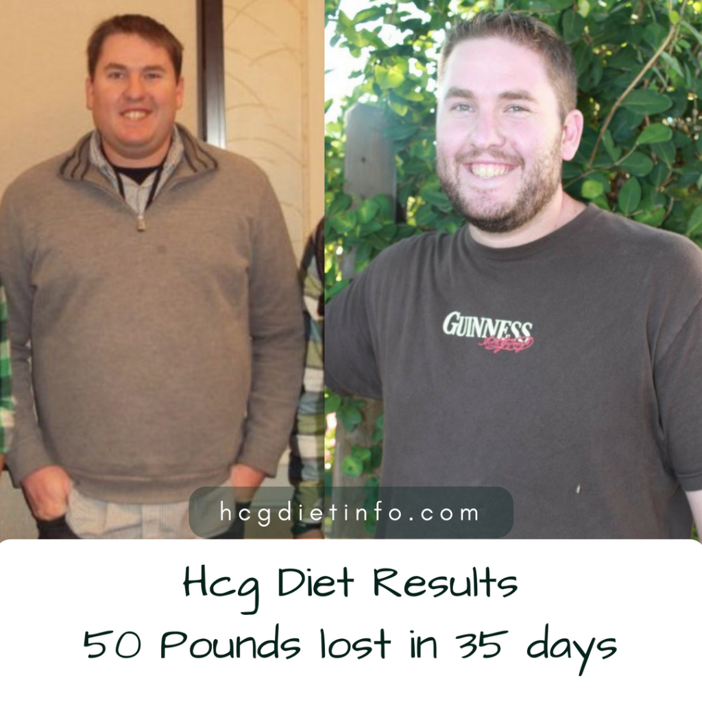 Hcg Diet Results: Lost 50 pounds in 35 days