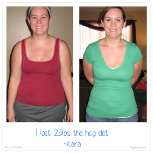 Hcg Diet Success Stories - Kara lost 25 pounds