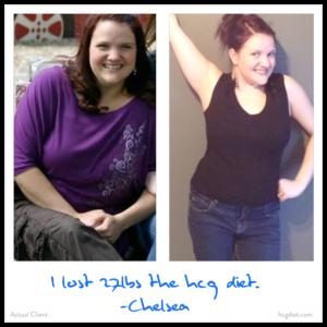Hcg Diet Chelsea Success Story - lost 27 pounds