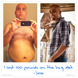 Hcg Diet Success Story - 100 pounds lost Jose