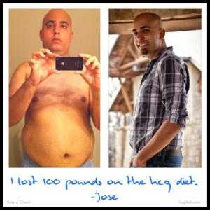 Hcg Diet Success Story - 100 pounds lost Jose