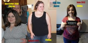Hcg Diet Results: 100 pounds gone!